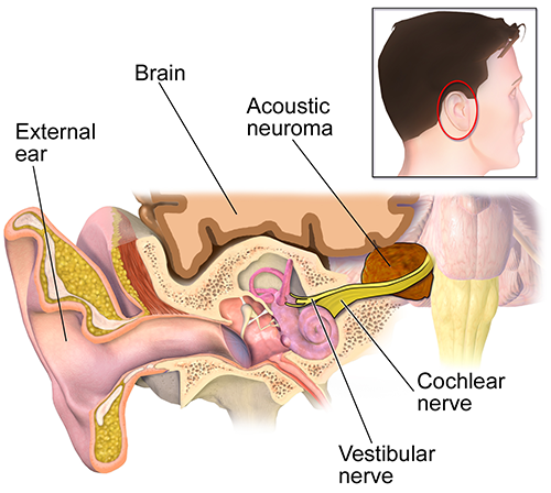 vestibular neuronitis, acoustic neuroma, Menieres Disease, Benign Paroxysmal Positional Vertigo, BPPV, otoxicity, stroke, trauma
